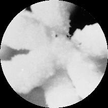 Foto microscópica de un lecho iónico en una unidad HumidiClean despúes de 800 horas
